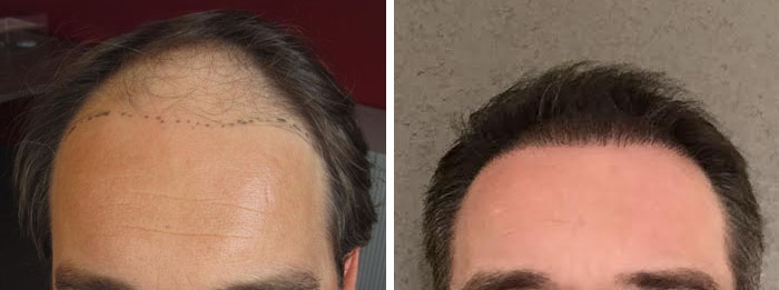 Bruno before and after the hair transplant.