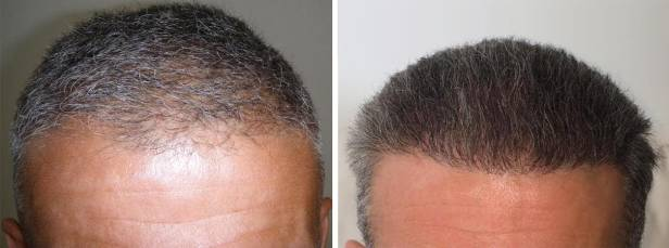 hairpalace reference hair transplant photo