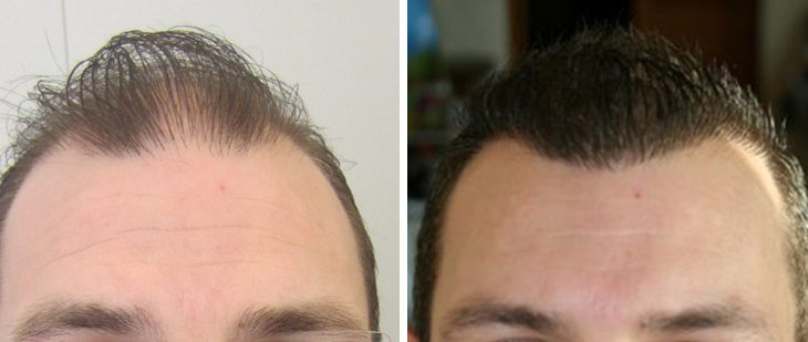 Greffe de cheveux - Yannick