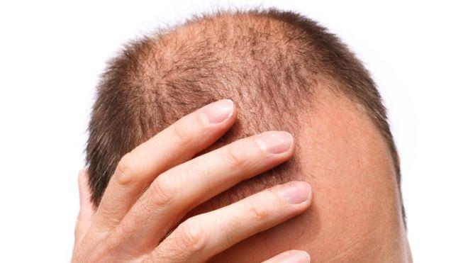 L'alopécie touche beaucoup de gens, mais le remede est lá! C'est la greffe de cheveux.