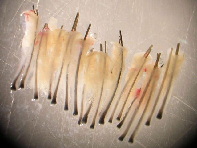 L'implant de cheveux un par un est la plus moderne méthode contre la calvitie.