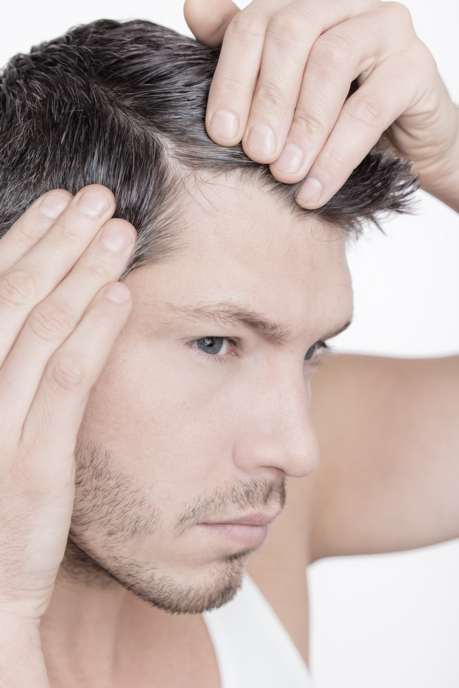 La microgreffe de cheveux est une solution définitive pour les hommes avec un probleme de calvitie.