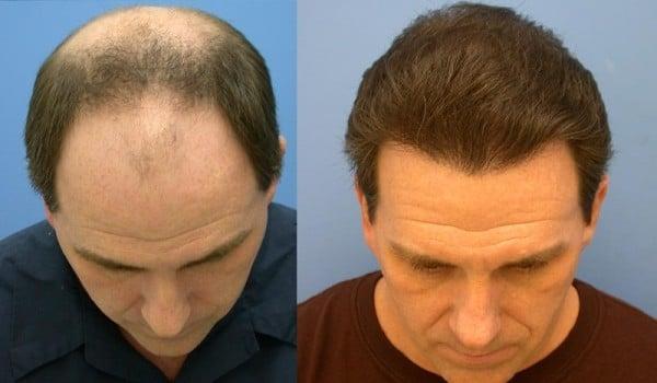 Quelles vitamines aident mieux de la chute des cheveux