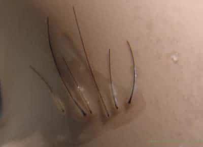 Unités folliculaires, c'est á dire les greffons d'une greffe de cheveux.