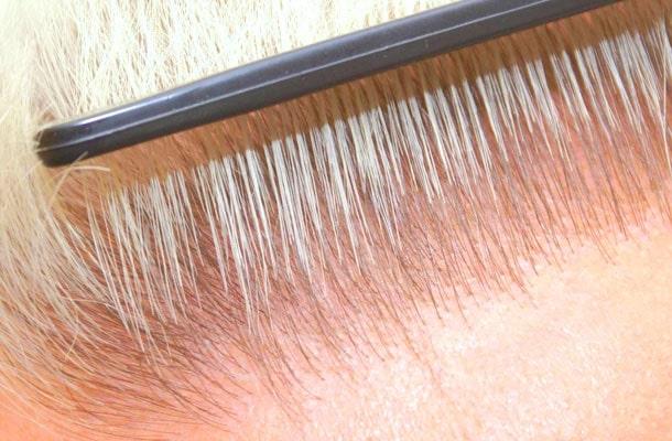 La greffe de cheveux FUE aide les personnes chauves.
