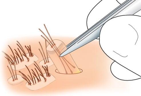 Le prélevement des cheveux á implanter.