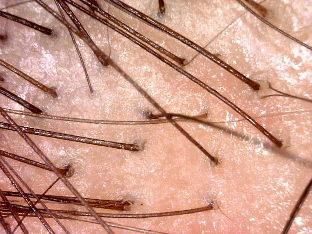 Cheveux sous la microscope. Microgreffe capillaire contre la calvitie !
