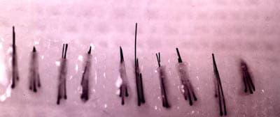 Les microgreffons qu'on réimplante.