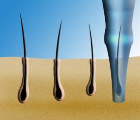 Le prélevement des cheveux est fait avec un petit bistouri rond.