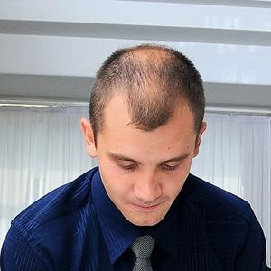 Stoppez la calvitie á l'aide d'une greffe de cheveux.