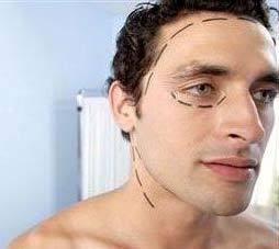 Les hommes s'adressent de plus en plus á la chirurgie esthétique de cheveux.