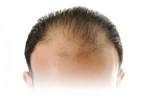 Hair transplant without pain and scars !