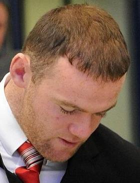 Résultat définitif d'un implant capillaire - Rooney a récupérer sa confiance en soi.
