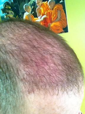Patient Hairpalace une semaine apres la FUE SAFE.