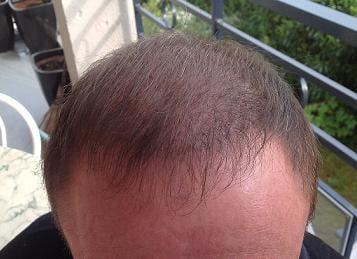 Résultat de 3 mois apres la greffe de cheveux.
