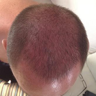 Photo de controle du patient Hairpalace - 3 semaines apres la greffe.