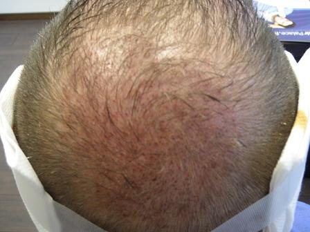 Patient Hairpalace apres la greffe de cheveux.