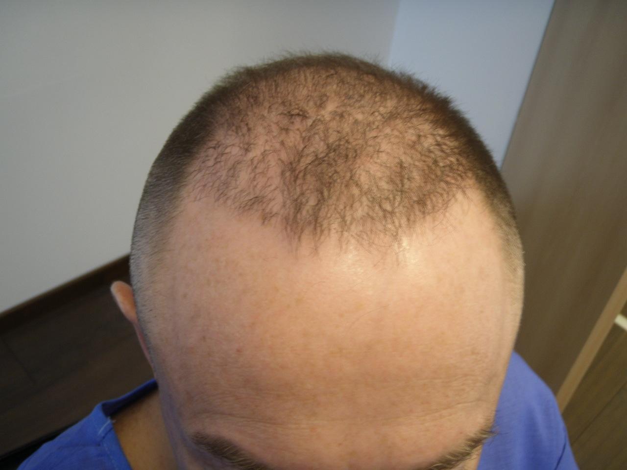 Patient Hairpalace avant la greffe.