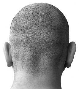 Faites connaissance avec l'implant capillaire le moins invasive et sans cicatrice !