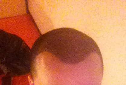 Résultat aprés 1 semaine d'une greffe de cheveux.
