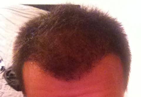 Patient 3 mois aprés la greffe de cheveux Hairpalace - Opinions.