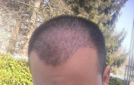 Patient apres 3 semaines de greffe de cheveux.