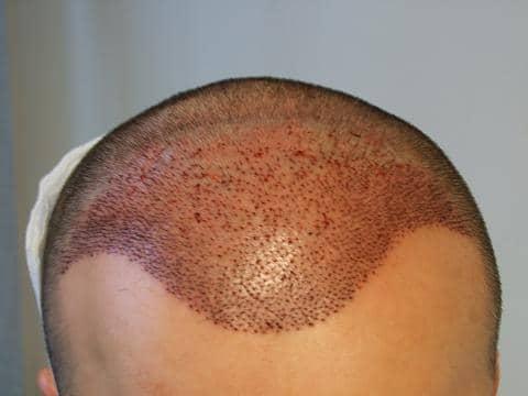 Tete du patient apres la greffe de cheveux.