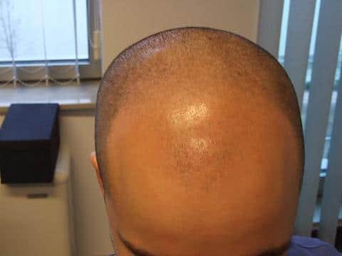 loris avant greffe de cheveux