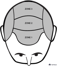 Les 3 zones selon lesquelles on redistribue les cheveux.