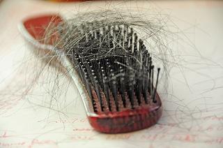 Chute de cheveux féminine ? Implants de cheveux !