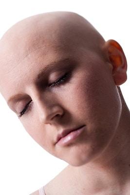 L'implantation de cheveux peut aider les femmes qui ont une chute de cheveux !