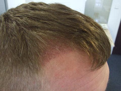 Patient de Hairpalace - 1 semaine apres l'intervention.