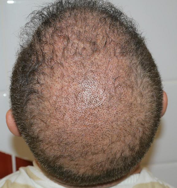 Petit points et croutes apres la greffe de cheveux.