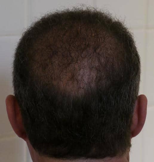 1 ans apres la greffe de cheveux
