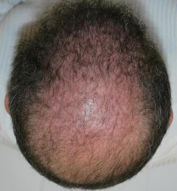 Et oú sont les cheveux sur la photo prise 3 mois apres la greffe ?