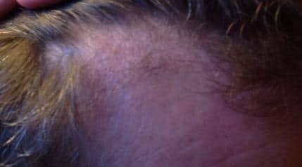 Resultat 3 mois apres l'implant capillaire chez Hairpalace.