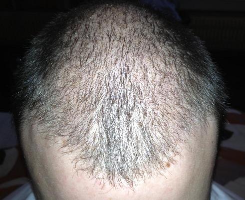 Regardez la ligne frontale 3 semaines apres la greffe capillaire.