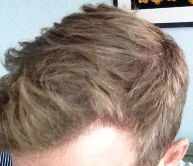 Résultat d'une greffe de cheveux chez HairPalace.
