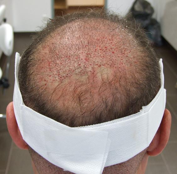 Patient juste apres l'implantation capillaire.