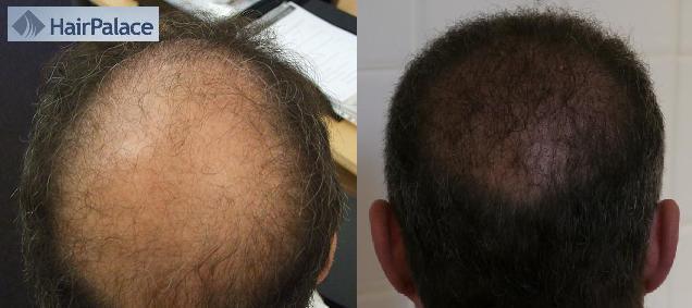 Résultat final d'un greffe de cheveux - avant et apres l'opération.