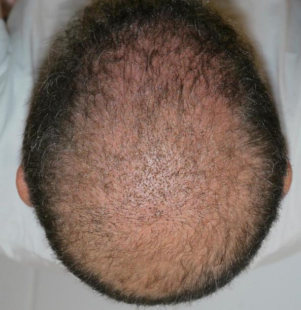 Controle de 3e semaine chez Hairpalace.
