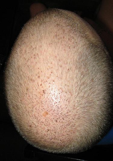 Résultat d'une semaine apres la greffe capillaire.