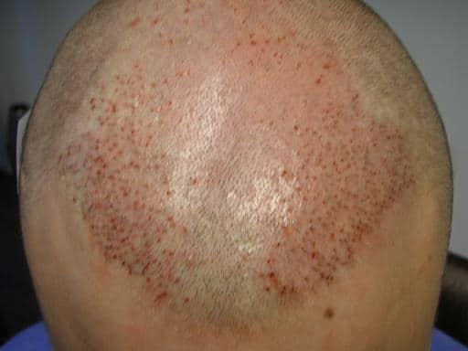Patient juste apres l'implantation de cheveux.
