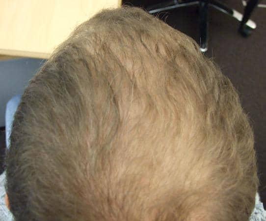 Patient avant l'intervention de greffe de cheveux.