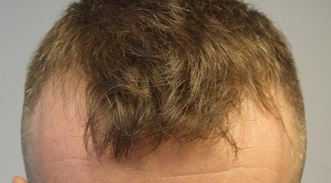 Patient Hairpalace avant la greffe de cheveux.