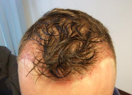 Patient Hairpalace apres la greffe.