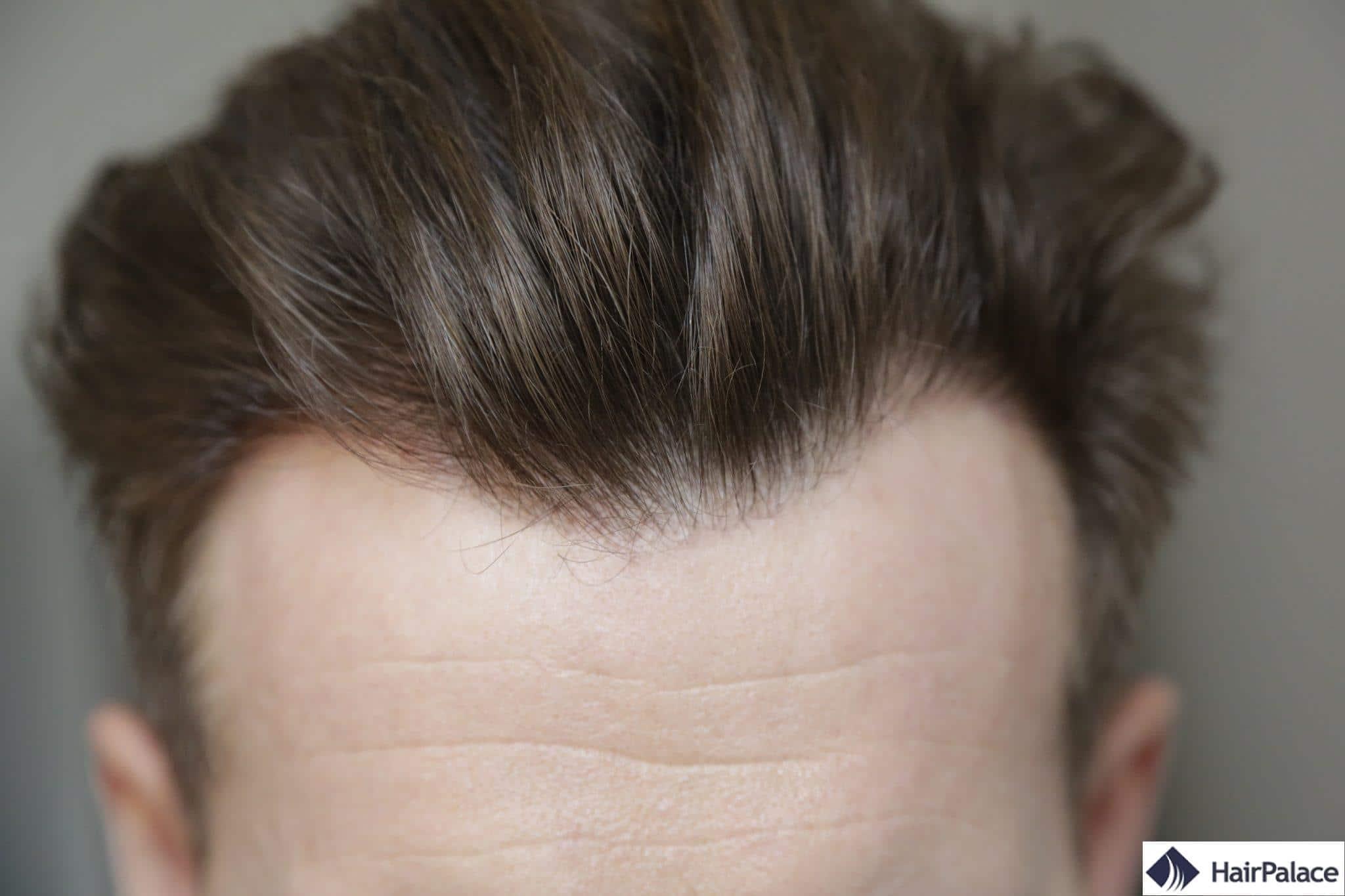 resultat final greffe cheveux fue 1 annee
