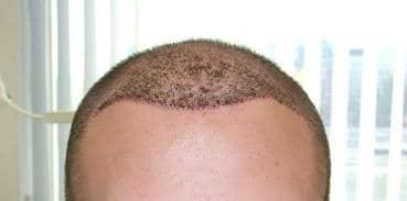 Resultat une semaine apres l'implant capillaire chez Hairpalace.