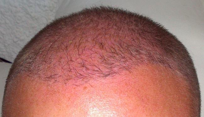 6 mois apres l'implantation capillaire.