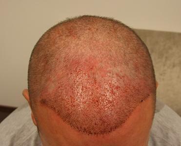 Patient de Hairpalace apres l'implantation capillaire.